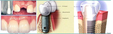 Dental Implant replacement of a single tooth